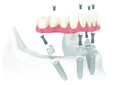 Render image of All-On-4 at Fairbanks Periodontal Associates in Fairbanks, AK