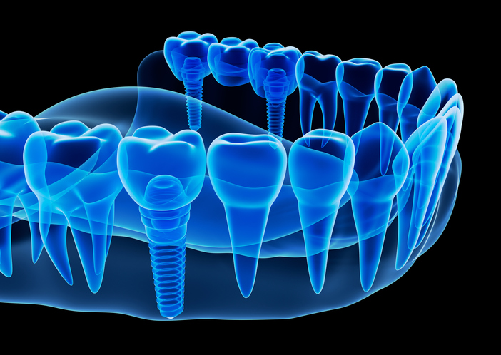 Rendering x-ray image of dental implant